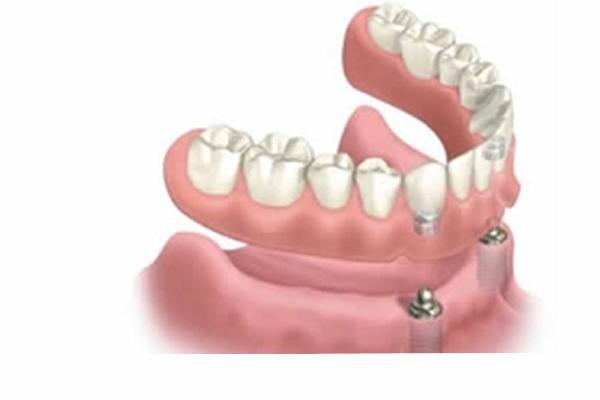a model of full dentures custom fit