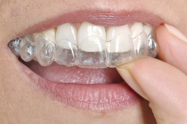 Lady using Invisalign in lieu of braces